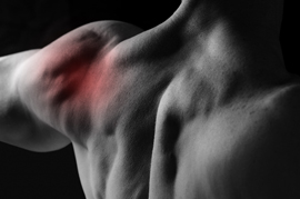 Dr. McCluskey can help relieve frozen shoulder and shoulder pain.